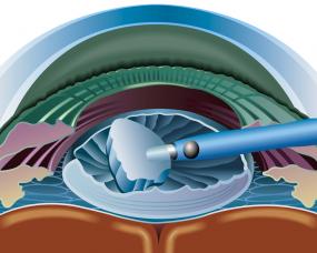 Commencing cataract surgery in Bendigo