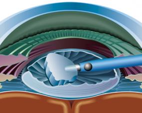 Complex cataract surgery talk
