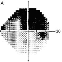 Glaucomatous field