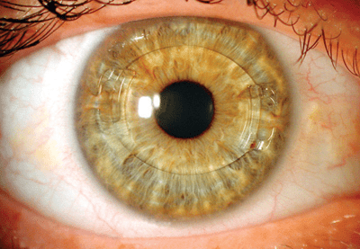 Artisan lens