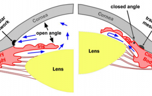 Closed angle Glaucoma