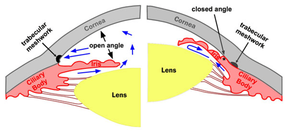 Figure 1  Open and closed angles  Image courtesy of Santorio eye    Open Angle Glaucoma Eye