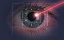 Laser cataract surgery information sheet