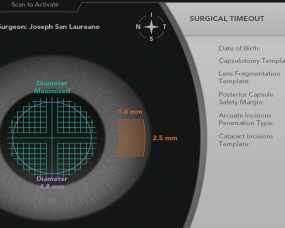 Laser cataract surgery gets new software