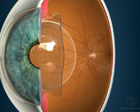 Implantable Collamer lens (ICL)