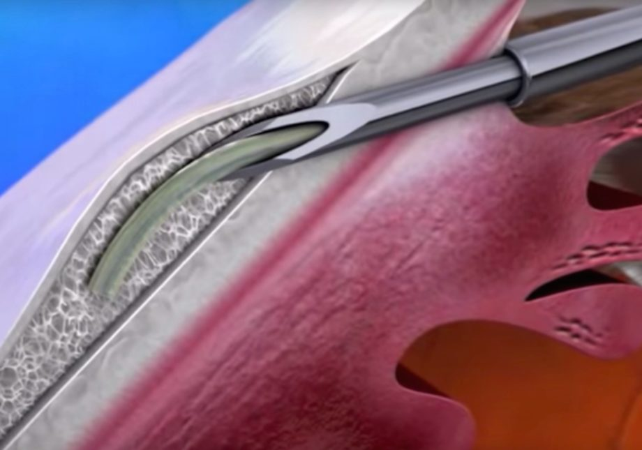 Xen gel stent now available in Melbourne