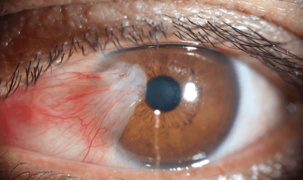 Image of pterygium surgery cost